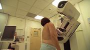 Darum lohnt sich eine Mammografie gleich doppelt
